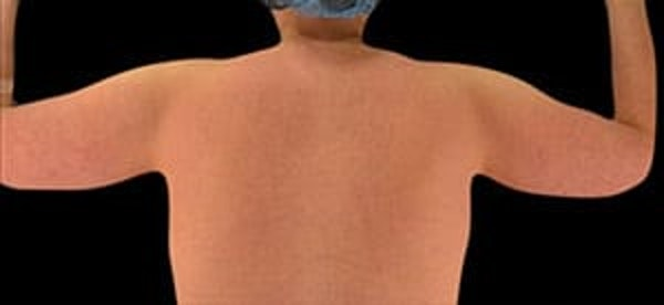 Arms Gallery - Patient 13900584 - Image 1