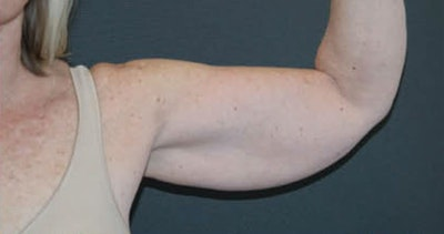 Arms Gallery - Patient 13900585 - Image 1