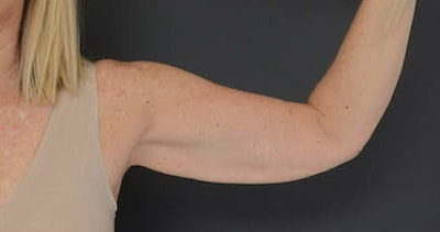 Arms Gallery - Patient 13900585 - Image 2