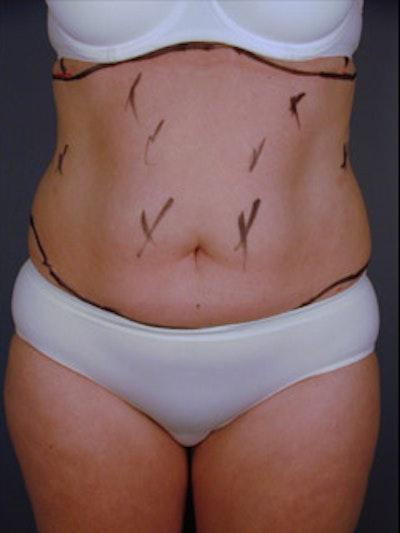 Abdomen Gallery - Patient 13900596 - Image 1