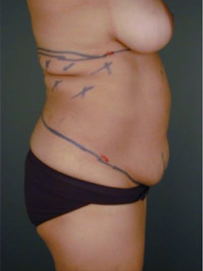 Abdomen Gallery - Patient 13900601 - Image 8