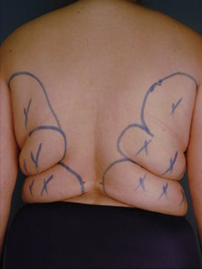 Back Gallery - Patient 13900614 - Image 1