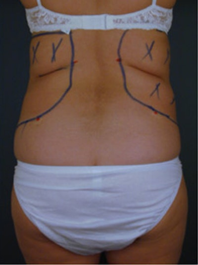 Back Gallery - Patient 13900615 - Image 1