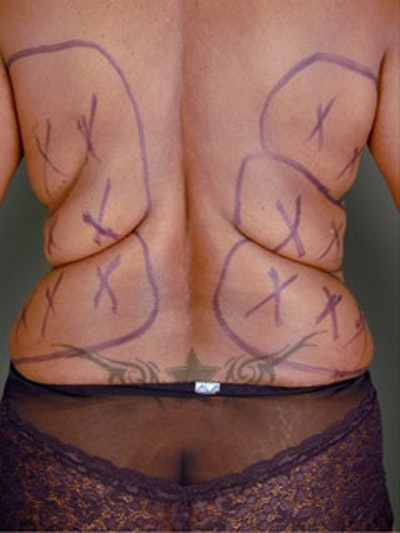 Back Gallery - Patient 13900616 - Image 1