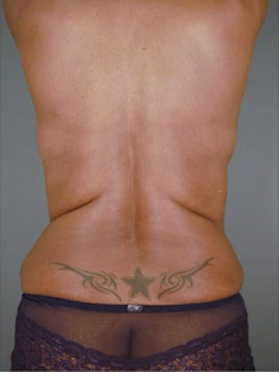 Back Gallery - Patient 13900616 - Image 2