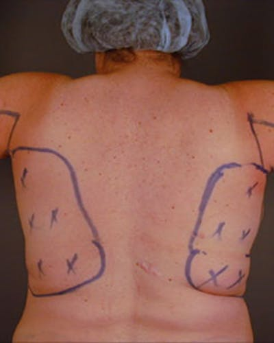 Back Gallery - Patient 13900618 - Image 5