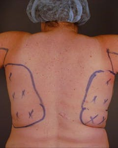 Back Gallery - Patient 13900618 - Image 1