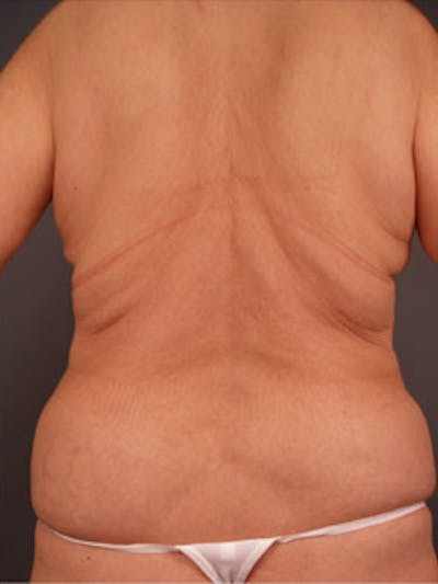 Back Gallery - Patient 13900617 - Image 2