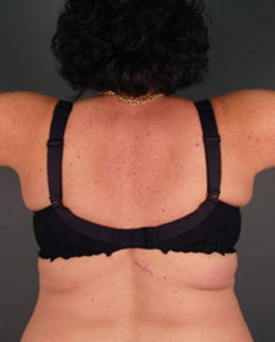 Back Gallery - Patient 13900618 - Image 2