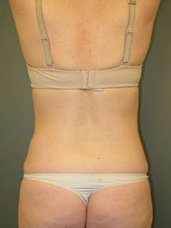 Back Gallery - Patient 13900620 - Image 2
