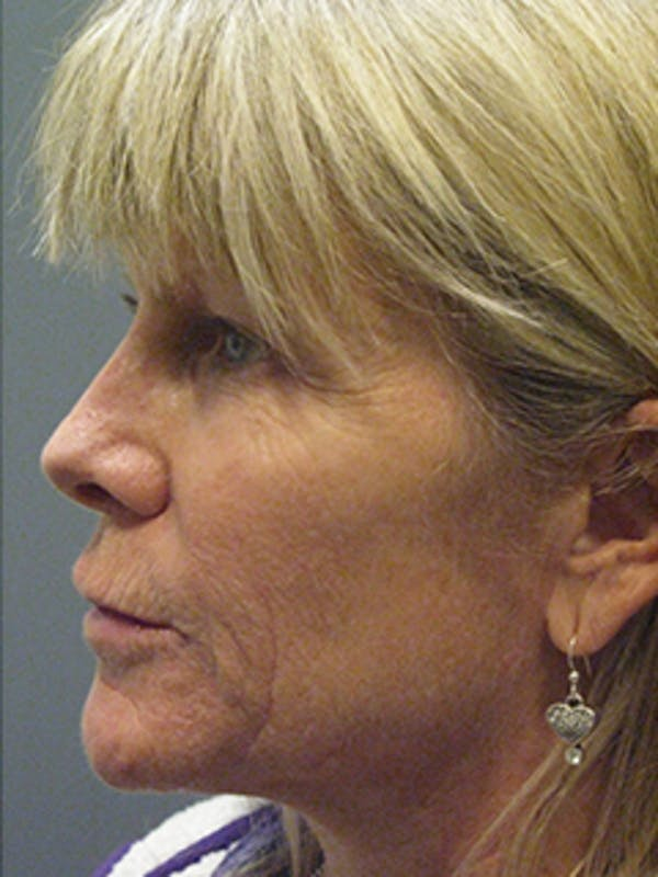 Face Gallery - Patient 13900623 - Image 1
