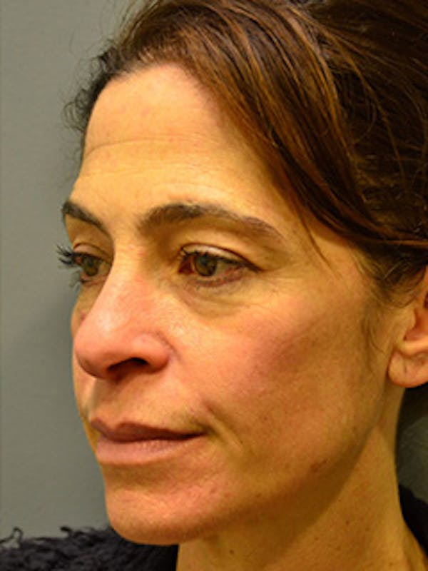 Face Gallery - Patient 13900625 - Image 1