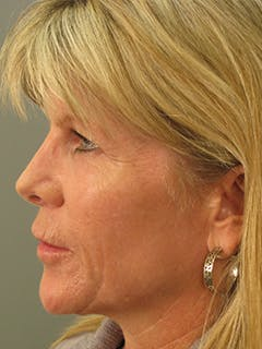Face Gallery - Patient 13900623 - Image 2