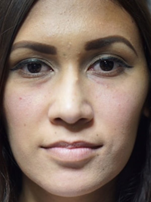 Face Gallery - Patient 13900624 - Image 2