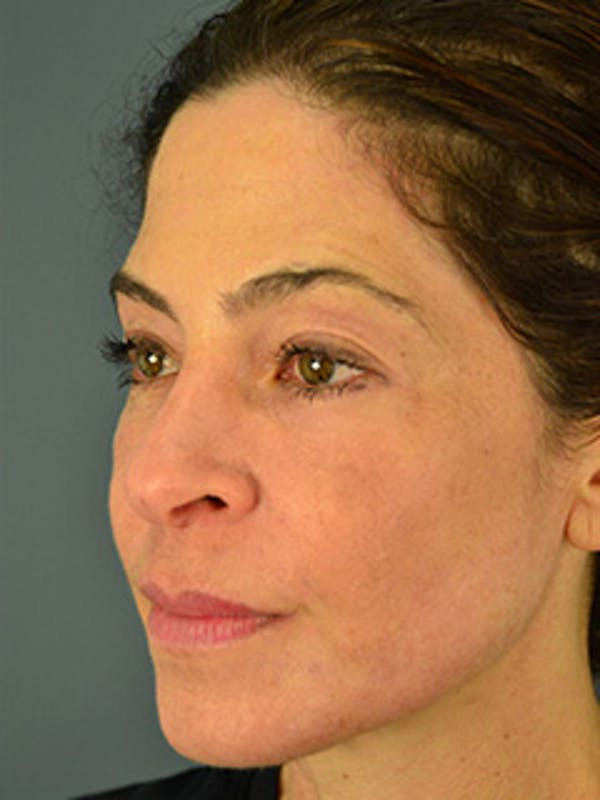Face Gallery - Patient 13900625 - Image 2