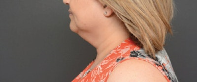 Face Gallery - Patient 13900627 - Image 1