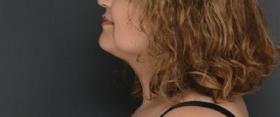 Face Gallery - Patient 13900627 - Image 2