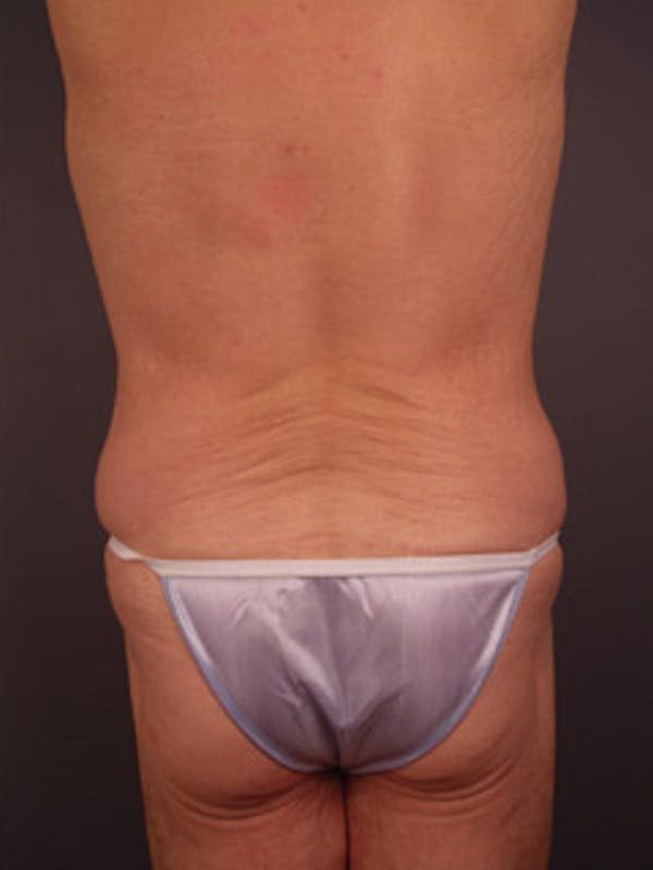 Flanks Gallery - Patient 13900645 - Image 2