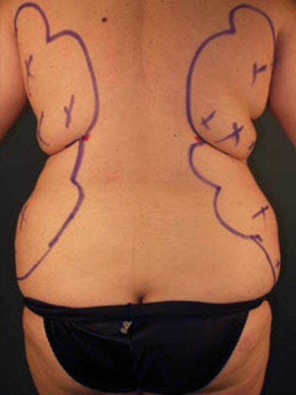 Hips Gallery - Patient 13900648 - Image 1