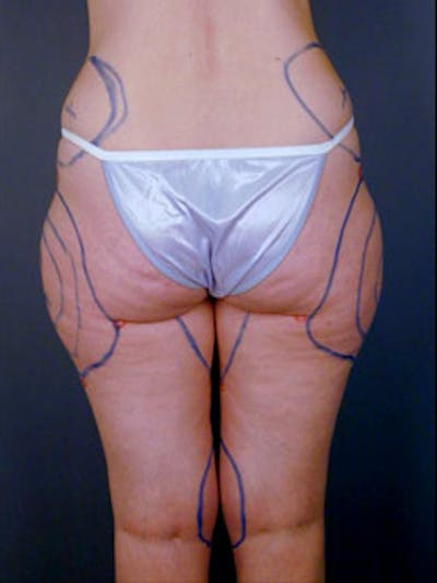 Hips Gallery - Patient 13900649 - Image 2
