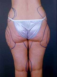 Hips Gallery - Patient 13900649 - Image 1