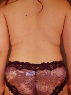 Hips Gallery - Patient 13900648 - Image 2
