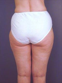 Hips Gallery - Patient 13900649 - Image 2