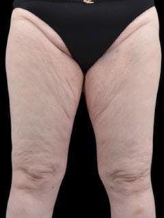 Hips Gallery - Patient 13900651 - Image 2