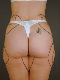 Buttocks Gallery - Patient 13900654 - Image 1