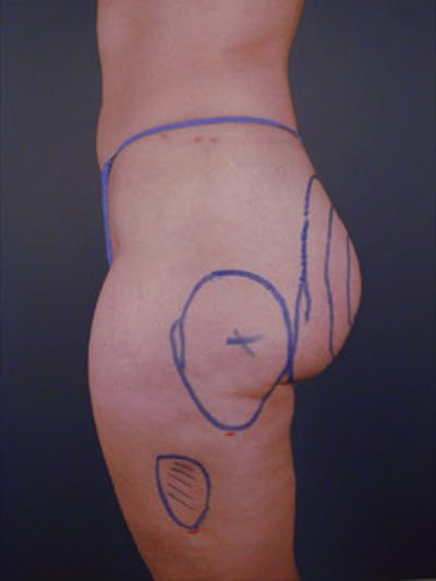 Buttocks Gallery - Patient 13900656 - Image 1