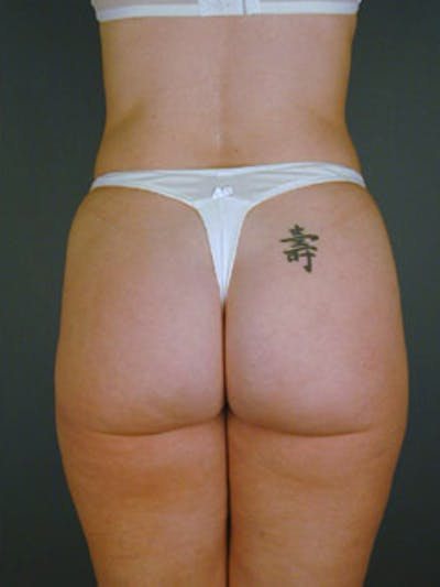 Buttocks Gallery - Patient 13900654 - Image 2