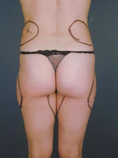 Buttocks Gallery - Patient 13900657 - Image 4