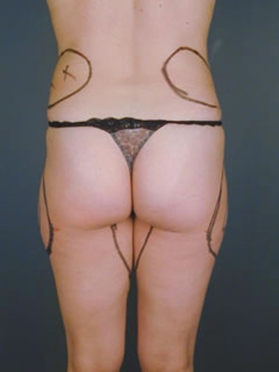 Buttocks Gallery - Patient 13900657 - Image 1