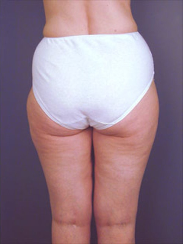 Buttocks Gallery - Patient 13900655 - Image 2