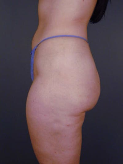Buttocks Gallery - Patient 13900656 - Image 2