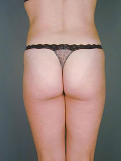 Buttocks Gallery - Patient 13900657 - Image 2