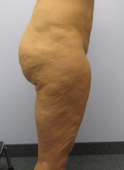 Buttocks Gallery - Patient 13900659 - Image 1