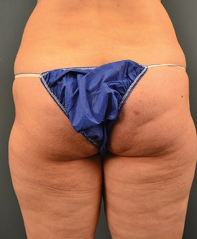 Buttocks Gallery - Patient 13900660 - Image 1