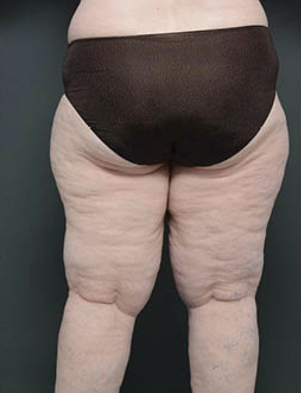 Buttocks Gallery - Patient 13900661 - Image 1