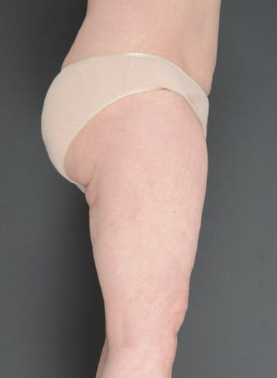 Buttocks Gallery - Patient 13900659 - Image 2