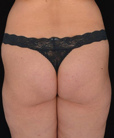 Buttocks Gallery - Patient 13900660 - Image 2