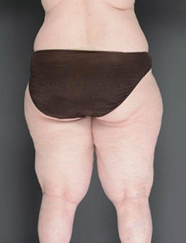 Buttocks Gallery - Patient 13900661 - Image 2