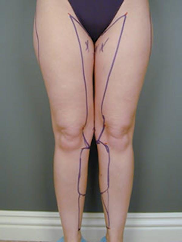 Legs Gallery - Patient 13900662 - Image 1
