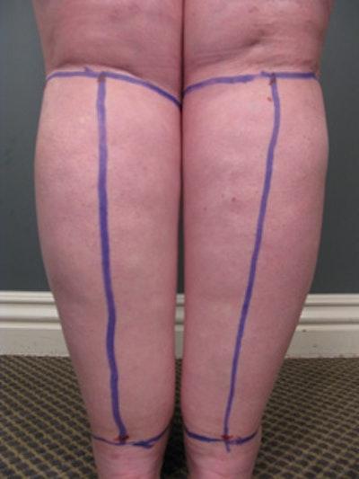 Legs Gallery - Patient 13900664 - Image 1