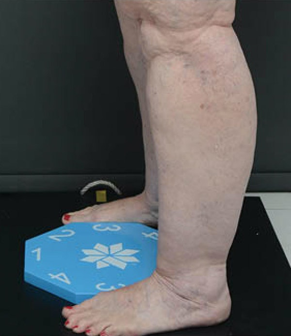 Legs Gallery - Patient 13900665 - Image 1