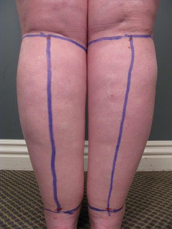 Legs Gallery - Patient 13900664 - Image 2