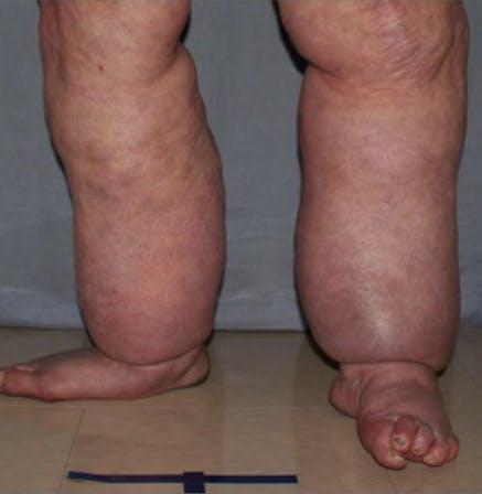Legs Gallery - Patient 13900666 - Image 1