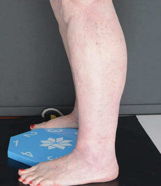 Legs Gallery - Patient 13900665 - Image 2