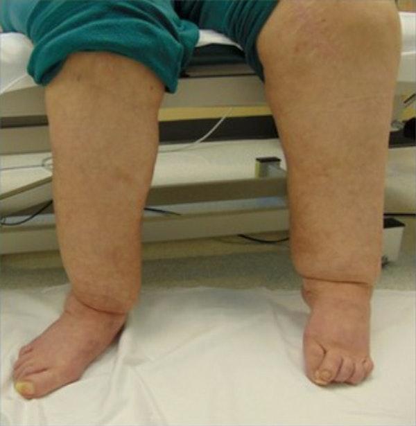 Legs Gallery - Patient 13900666 - Image 2
