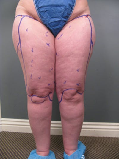 Thighs Gallery - Patient 13900669 - Image 1